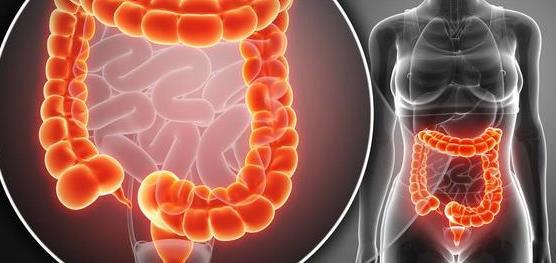 炎症性肠病不同于普通肠胃炎