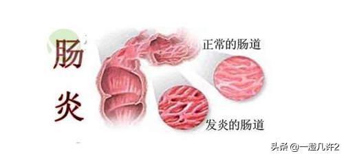 肠炎恶化都有哪些表现?