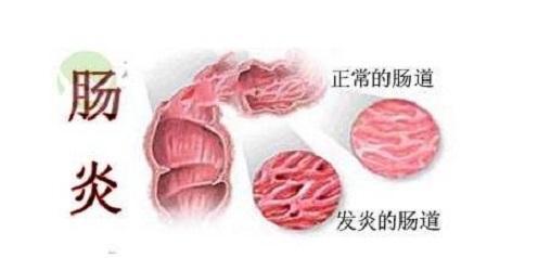 肠炎是不是不能吃水果?