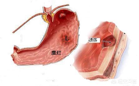 胃溃疡和胃糜烂哪个严重?
