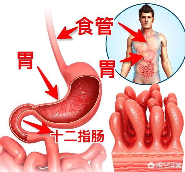 上腹痛一定是胃溃疡吗?如何区分十二指肠溃疡和胃溃疡?