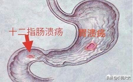 请问十二指肠球部溃疡,吃什么药能有效根治?