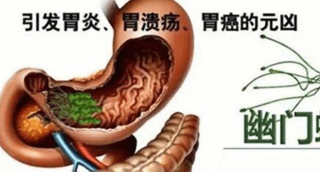 胃肠炎和肠胃炎区别肠胃炎的症状及治疗