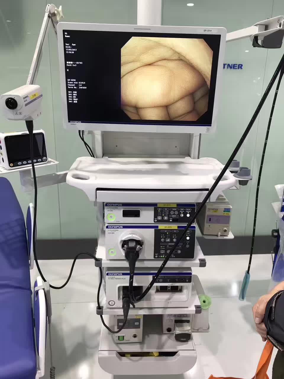 第一次做肠镜的感觉,肠胃镜